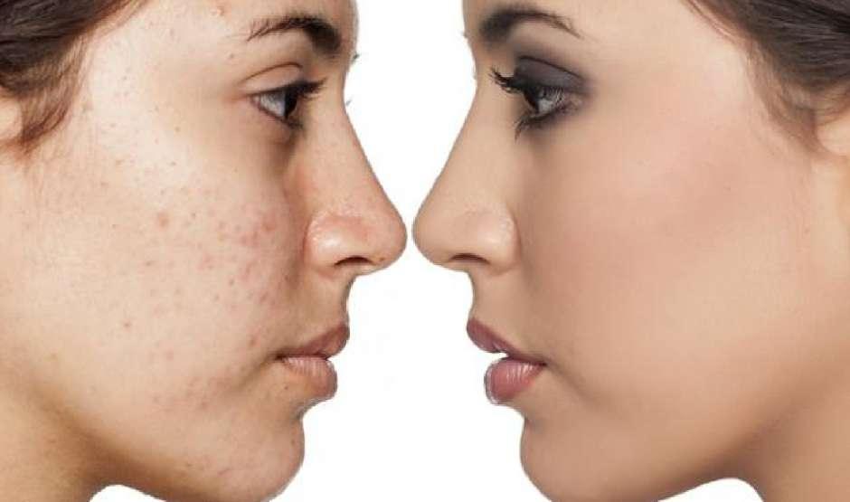 crema acne acido retinoico