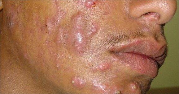 acne conglobata pictures
