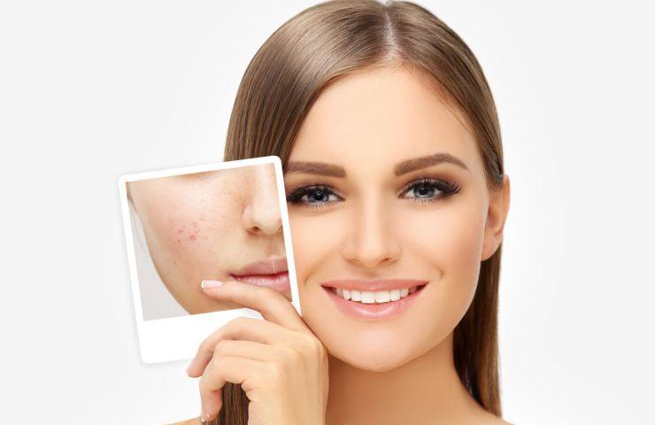 remedios caseros para el acne con sabila