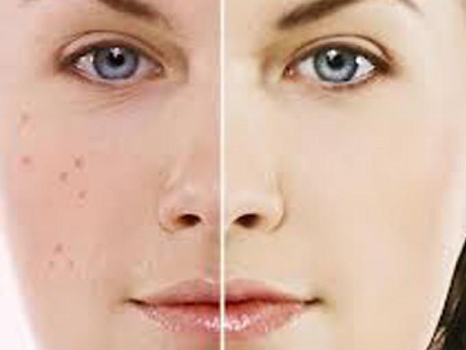 remedios caseros para el acne hormonal