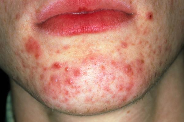 acne conglobata natural treatment