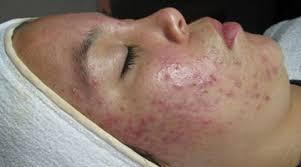 acné vulgar tratamiento