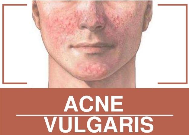 acné vulgar grave