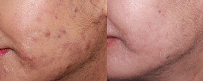 cicatrices acne